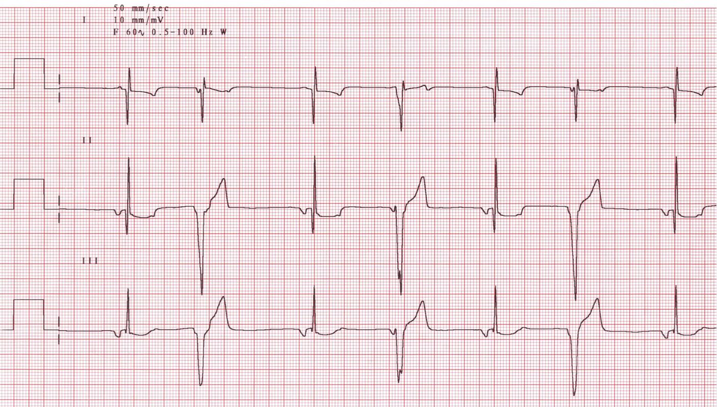 Automated ECG interpretation