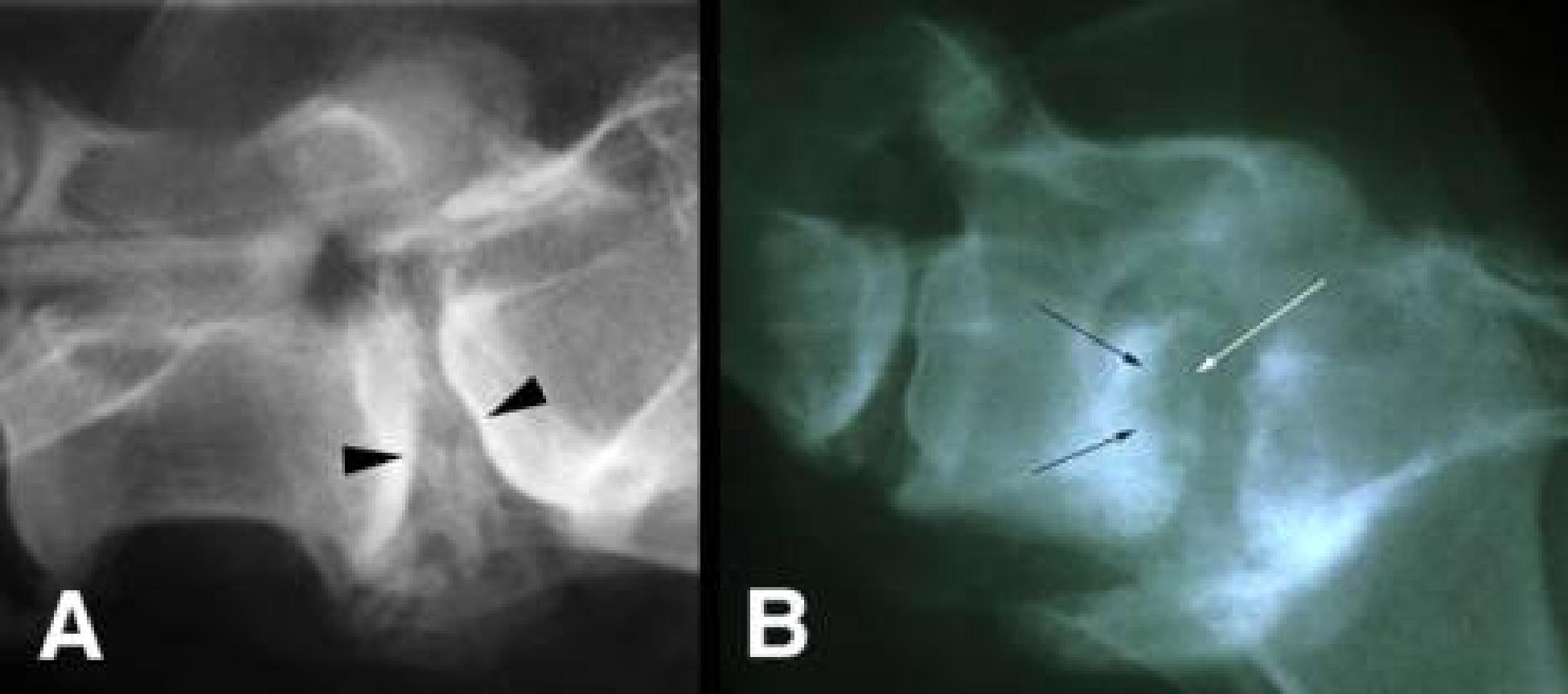 discospondylitis   canada west veterinary specialists