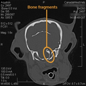 CT scan showing bone fragments